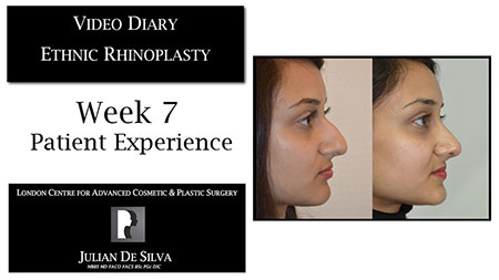 Video Diary Ethnic Rhinoplasty Week 7 Patient Experience