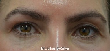 Female Blepharoplasty Before 14