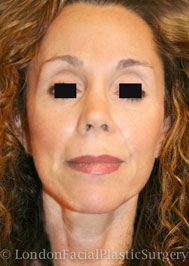 Facelift & Neck Lift (Rhytidectomy) After 1