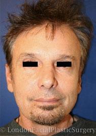 Facelift & Neck Lift (Rhytidectomy) After 2