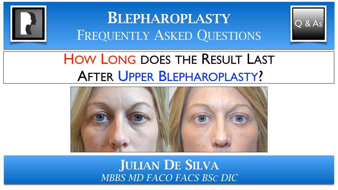 Watch Video: HOW LONG does the result last after Upper Blepharoplasty? How many YEARS does an eyelid lift last?