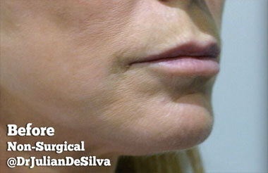 Non-Surgical Treatments Before 8