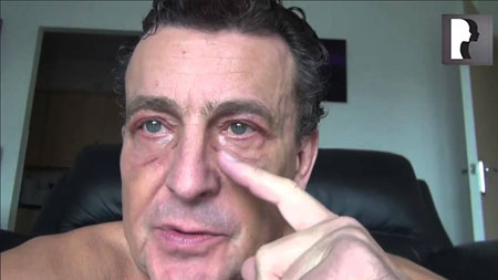 Male Blepharoplasty, Eyelid Lift Diary -Day 10 after surgery