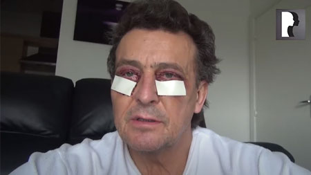 Male Blepharoplasty/ Eyelid Lift Diary Day 2 after surgery