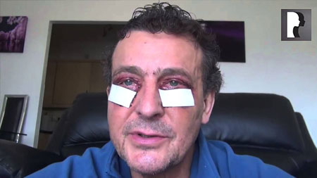 Male Blepharoplasty, Eyelid Lift Diary- Day 3 after surgery
