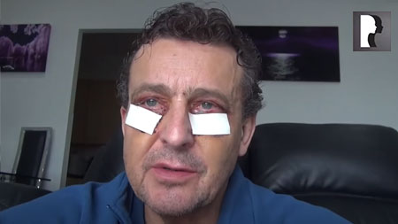 Male Blepharoplasty, Eyelid Lift Diary -Day 4 after surgery