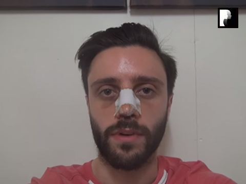 Middle Eastern Male Rhinoplasty Video Diary -Day 3 After surgery