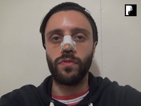 Middle Eastern Male Rhinoplasty Video Diary -Day 4 After surgery