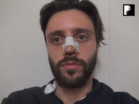 Middle Eastern Male Rhinoplasty Video Diary -Day 7 After surgery