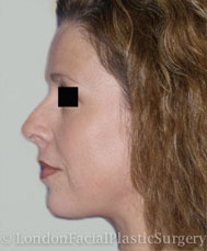Facelift & Neck Lift (Rhytidectomy) After 3