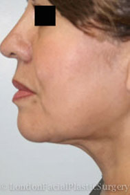 Facelift & Neck Lift (Rhytidectomy) After 4