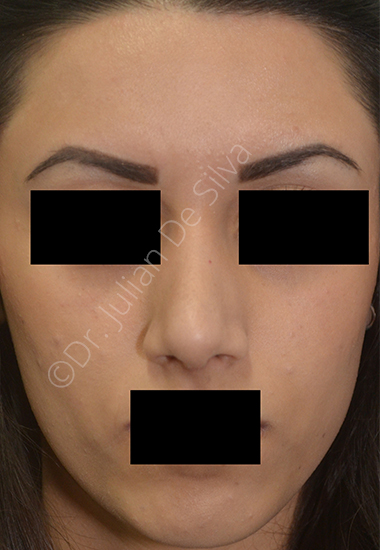 Nose Re-Shaping After 17