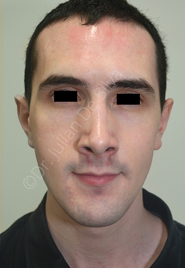 Nose Re-Shaping After 24