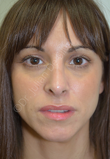 Nose Re-Shaping After 25