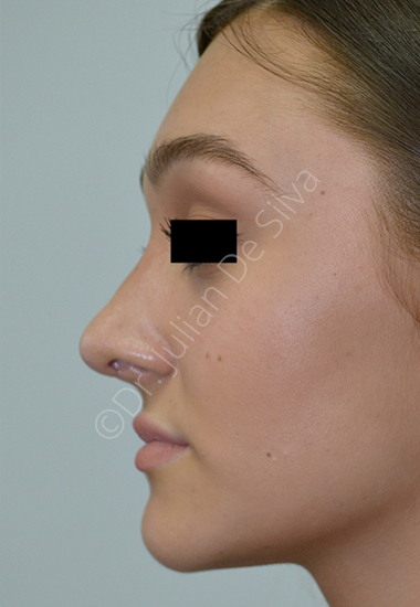 Nose Re-Shaping After 27