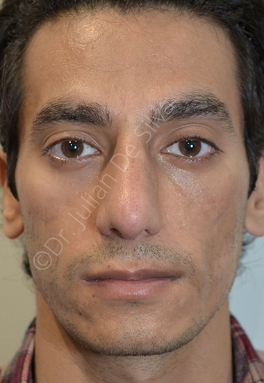 Nose Re-Shaping After 38