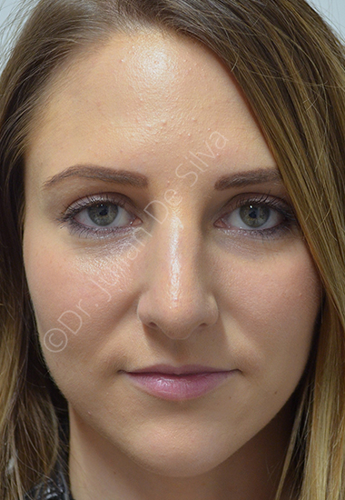 Nose Re-Shaping After 40