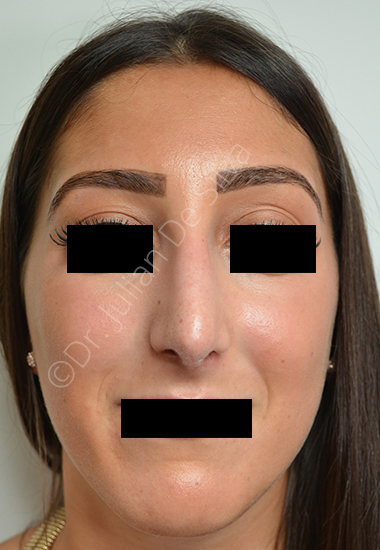 Nose Re-Shaping After 6