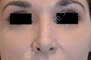 Nose Re-Shaping After 70