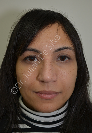 Nose Re-Shaping Before 13