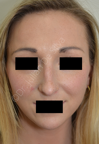 Nose Re-Shaping Before 19