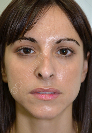 Nose Re-Shaping Before 25