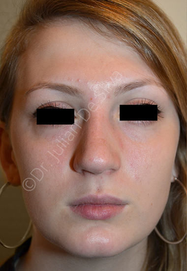 Nose Re-Shaping Before 30