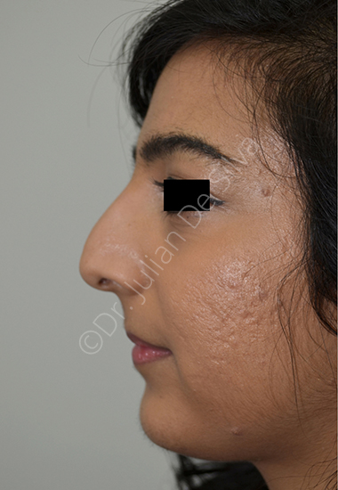 Nose Re-Shaping Before 32