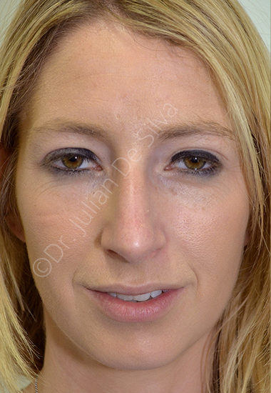 Nose Re-Shaping Before 36