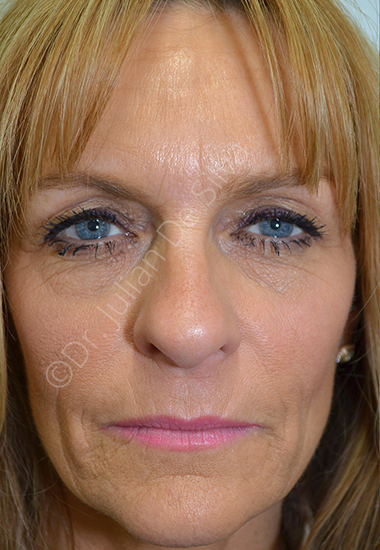 Nose Re-Shaping Before 45