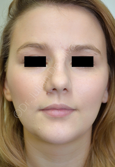 Nose Re-Shaping Before 52