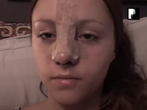 Watch Video: 2 Rhinoplasty Nose Job Diary Day 1 After Surgery