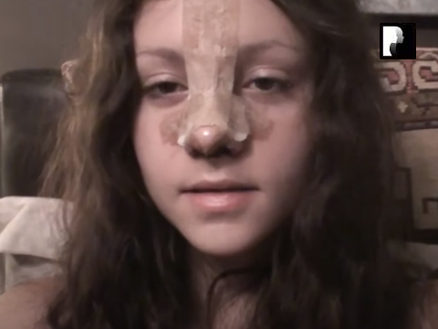 Watch Video: 7 Rhinoplasty Nose Job Diary Day 6 After Surgery
