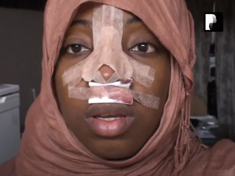 Revision Ethnic Rhinoplasty Nose Job Diary Day 1 After Surgery