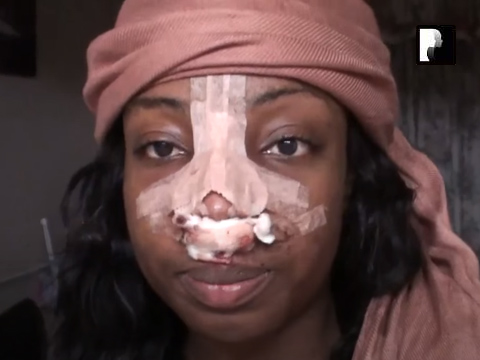 Revision Ethnic Rhinoplasty Nose Job Diary Day 2 After Surgery