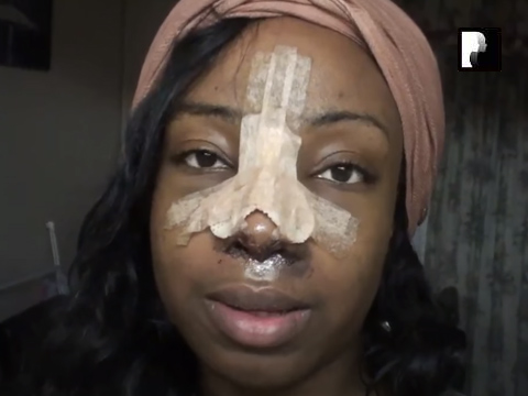 Revision Ethnic Rhinoplasty Nose Job Diary Day 3 After Surgery