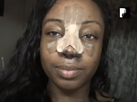 Revision Ethnic Rhinoplasty Nose Job Diary Day 4 After Surgery