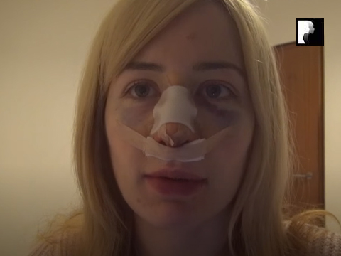 Revision Rhinoplasty Video Diary Same Day of surgery