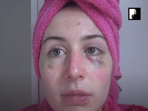 Revision Rhinoplasty Video Diary Day 11 after surgery