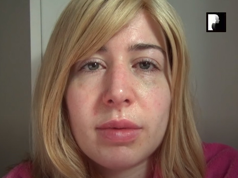 Revision Rhinoplasty Video Diary Day 15 after surgery