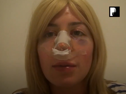 Revision Rhinoplasty Video Diary Day 1 after surgery