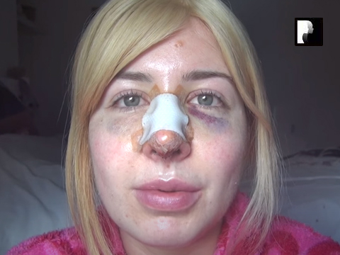 Revision Rhinoplasty Video Diary Day 2 after surgery
