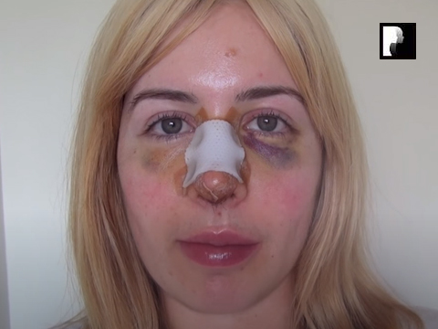 Revision Rhinoplasty Video Diary Day 5 after surgery