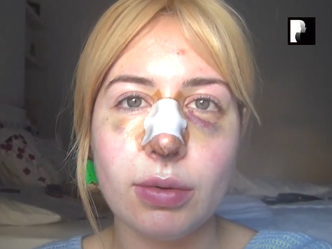 Revision Rhinoplasty Video Diary Day 6 after surgery