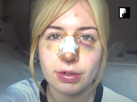 Revision Rhinoplasty Video Diary Day 7 after surgery