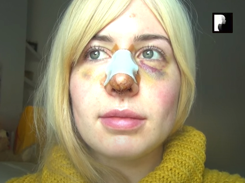 Revision Rhinoplasty Video Diary Day 8 after surgery