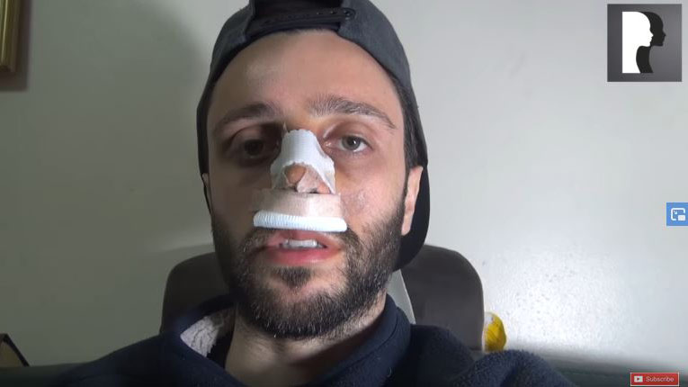 Video Diaries: middle eastern man in his 20s underwent rhinoplasty and septoplasty under sedation anaesthesia