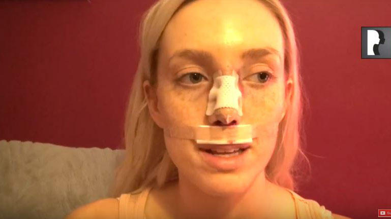 Video Diaries: patient who underwent Closed Rhinoplasty