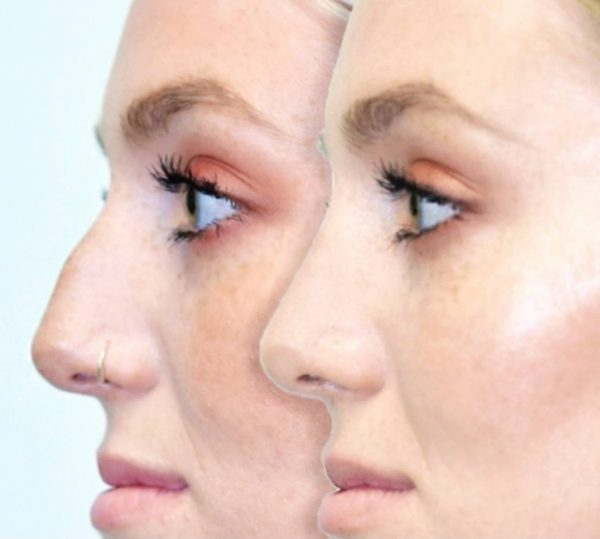 Before and After Photos: Nose re shaping
