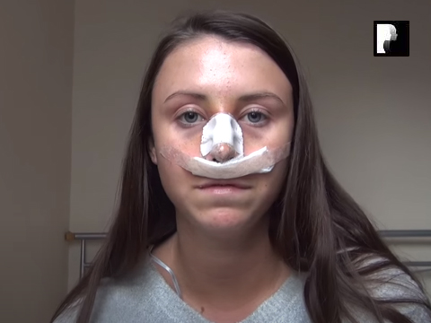 Watch Video: Rhinoplasty & Septoplasty Video Diary Day 1 After Surgery